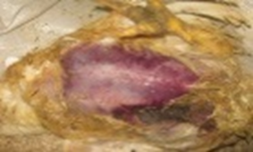 klostridioz-1-1