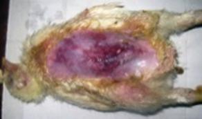 klostridioz-1