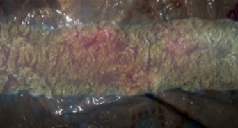 klostridioz-7