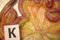 Снижение рисков возникновения патологий репродуктивной системы у кур родительского стада бройлеров, связанных с нарушением минерального обмена