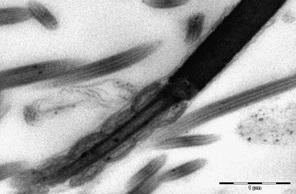 Продольный срез через средний отдел жгутика. Набухание митохондрий, частичная деструкция крист. Ув. × 22 000