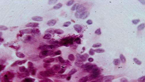 Рис.1 Световая микроскопия на хламидиоз окрашенная по Романовскому-Гимза